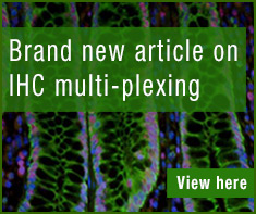 Brand new article on IHC multi-plexing