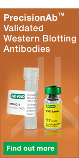 PrecisionAb™ Antibodies Validated for Western Blotting