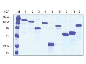 SDS-PAGE showing antigens expressed as AgX fusion proteins