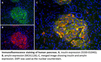 Immunofluorescence staining of human pancreas