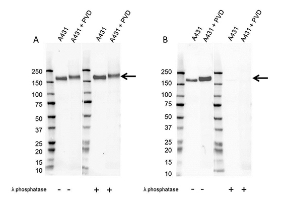 Fig. 2. Western blot analysis of whole cell lysates probed with A, Mouse Anti-EGF Receptor Antibody (VMA00061) or B, Mouse Anti-EGF Receptor (pTyr1173) Antibody (VMA00752),