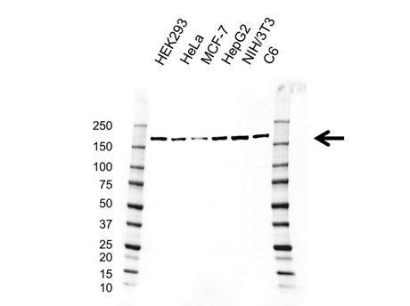 Western blot analysis of whole cell lysates probed with Mouse Anti-ROCK1 Antibody (VMA00614) followed by detection with HRP conjugated Goat Anti-Mouse IgG (1/10,000, STAR207P) and visualized on the ChemiDoc MP with 11 second exposure