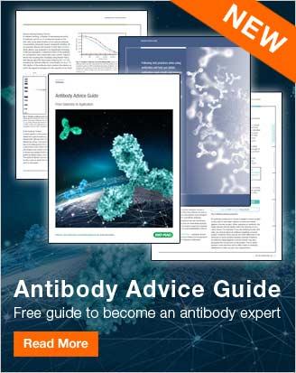 Antibody Advice Guide