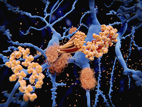 What Causes Alzheimer's Disease?