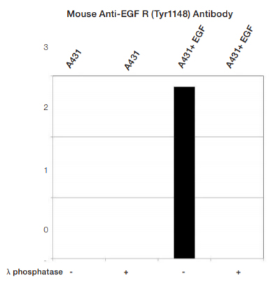 Fig. 4. Normalized signal intensity of EGF R (pTyr1148)