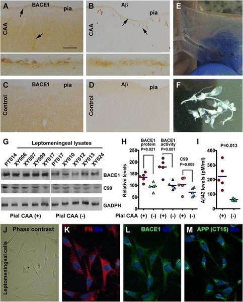 Amyloid Precursor Protein Antibody gallery image 4