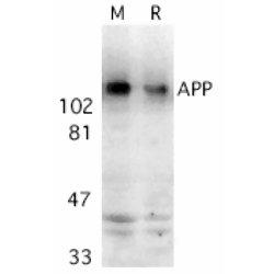 Amyloid Precursor Protein Antibody gallery image 1