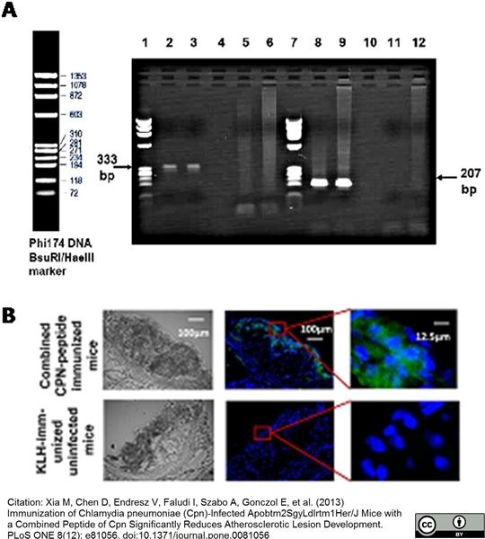 Chlamydia LPS Antibody | CF 6J12 gallery image 1