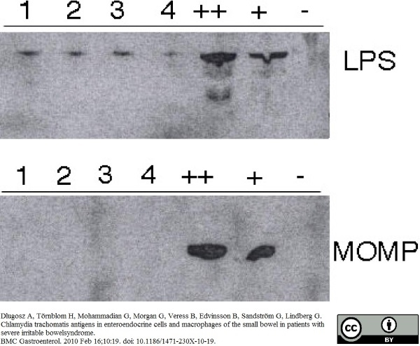 Chlamydia trachomatis LPS Antibody | 1312/236 gallery image 1