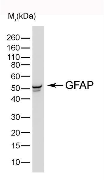 GFAP Antibody | 4A11 gallery image 1