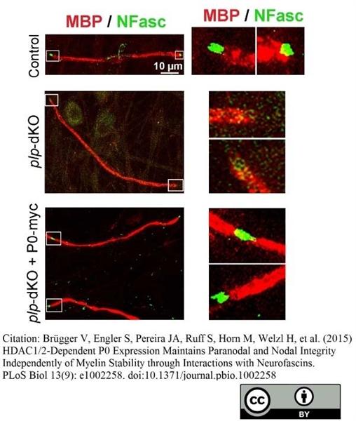 MBP Antibody | 12 gallery image 19