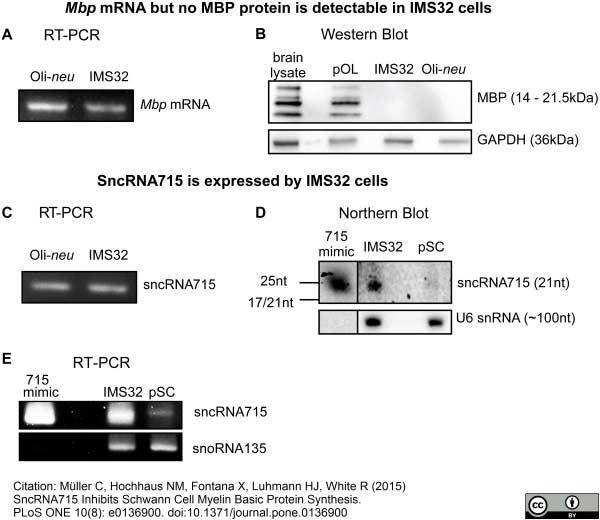 MBP Antibody | 12 gallery image 10