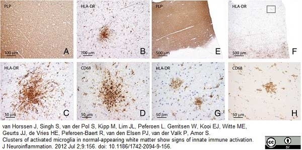 Myelin Proteolipid Protein Antibody | plpc1 gallery image 6