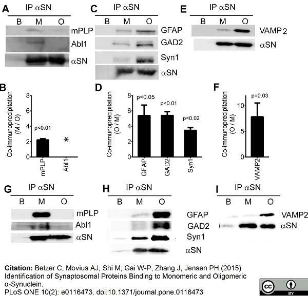 Myelin Proteolipid Protein Antibody | plpc1 gallery image 4