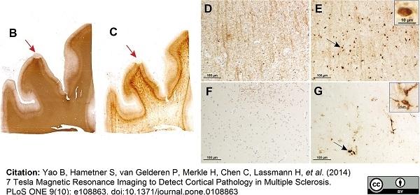 Myelin Proteolipid Protein Antibody | plpc1 gallery image 3