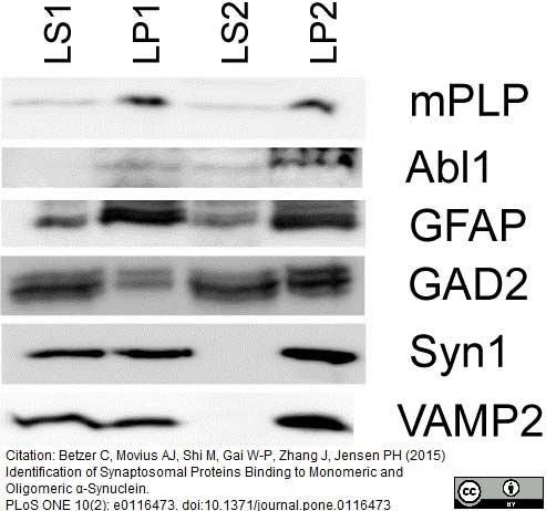 Myelin Proteolipid Protein Antibody | plpc1 thumbnail image 7