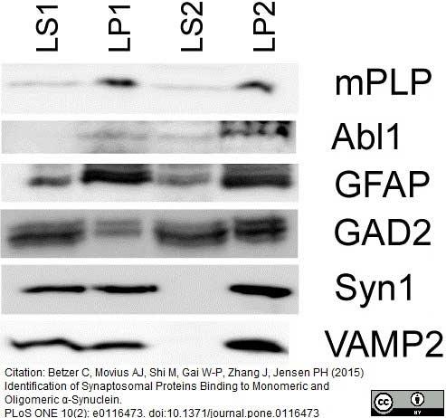 Myelin Proteolipid Protein Antibody | plpc1 gallery image 7