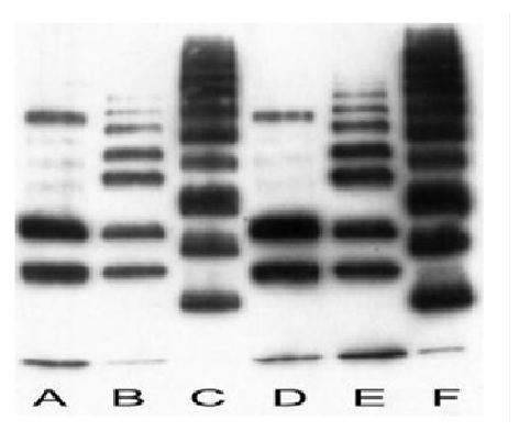 mono- and polyubiquitin Antibody | FK2 gallery image 1