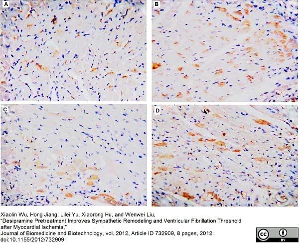GAP43 Antibody gallery image 1
