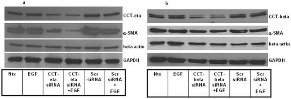 CCT eta Antibody | PK/16/8/a gallery image 4