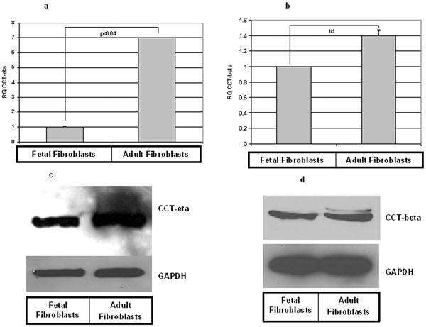 CCT eta Antibody | PK/16/8/a gallery image 2