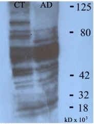 Malondialdehyde Antibody gallery image 1