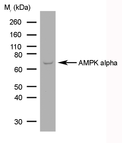 AMPK Alpha 1/2 Antibody | 84.1 gallery image 1
