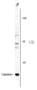 Calretinin Antibody gallery image 1