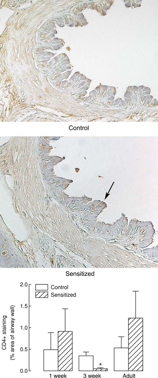 CD4 Antibody | CT7 gallery image 3