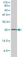 14-3-3 Beta Antibody | 2G6-3F2 gallery image 1