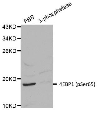 4EBP1 (pSer65) Antibody gallery image 1