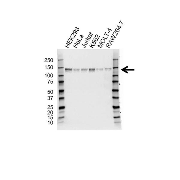 ABL2 Antibody (PrecisionAb<sup>TM</sup> Antibody) gallery image 1