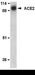 ACE2 Antibody gallery image 1
