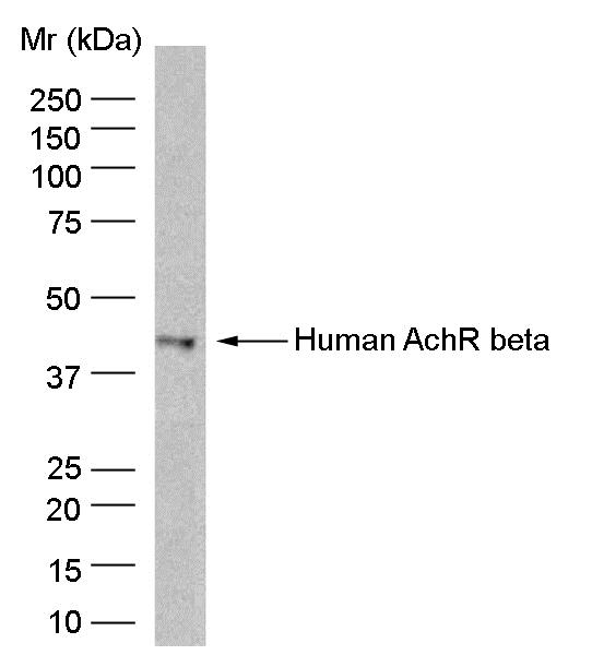AChR Beta Antibody   B3 gallery image 1