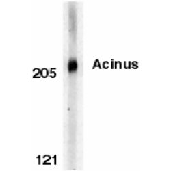 Acinus Antibody gallery image 1