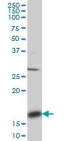 ACP1 Antibody | 4B10 gallery image 1