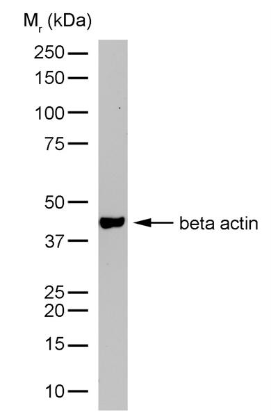 Actin Beta Antibody | 12141 gallery image 4