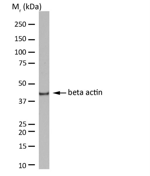 Actin Beta Antibody | 12141 gallery image 1