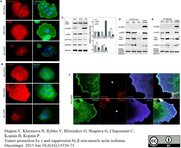 Actin Gamma Antibody | 2A3 gallery image 7