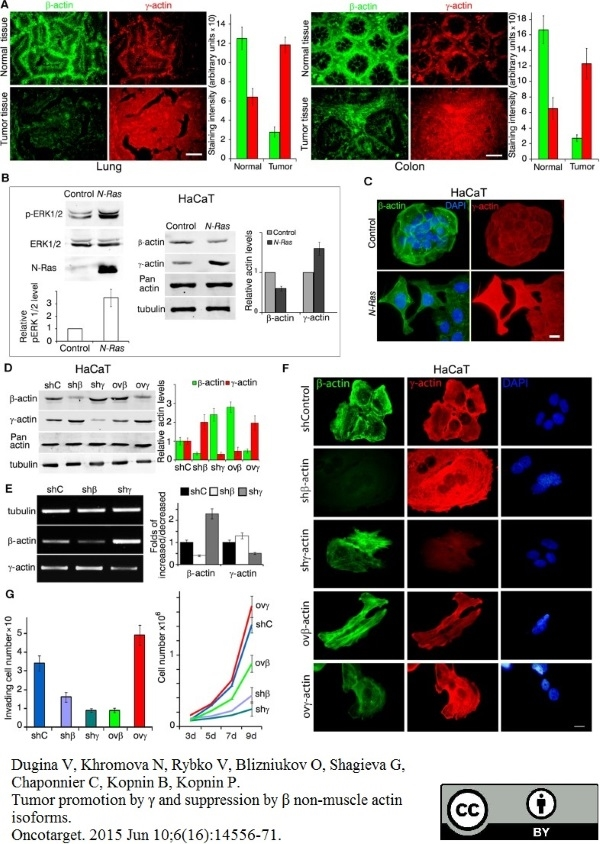 Actin Gamma Antibody | 2A3 gallery image 3