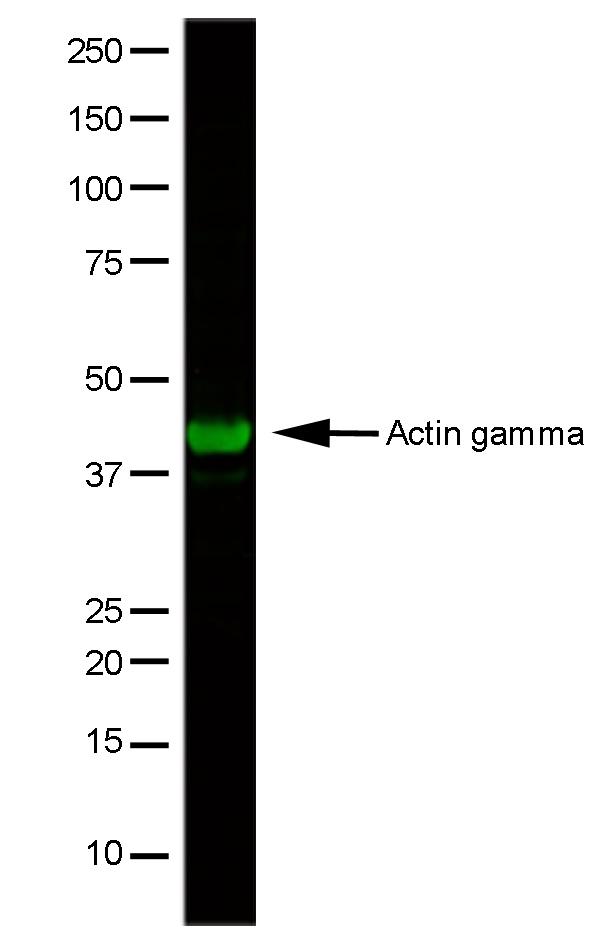 Actin Gamma Antibody | 2A3 gallery image 1