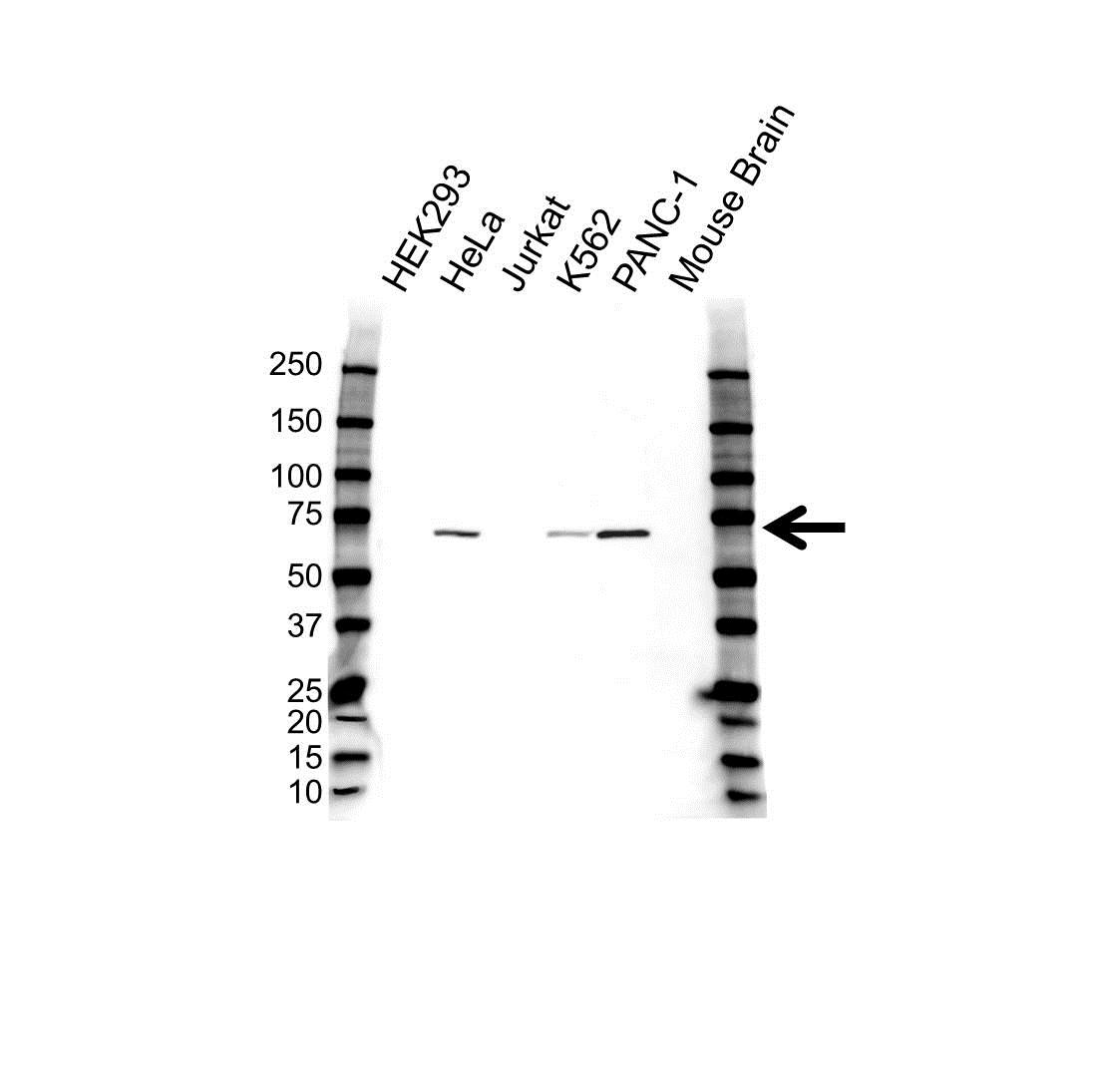 ACVR2B Antibody (PrecisionAb<sup>TM</sup> Antibody) gallery image 1