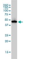 ADA Antibody | 4G4-1C6 gallery image 1