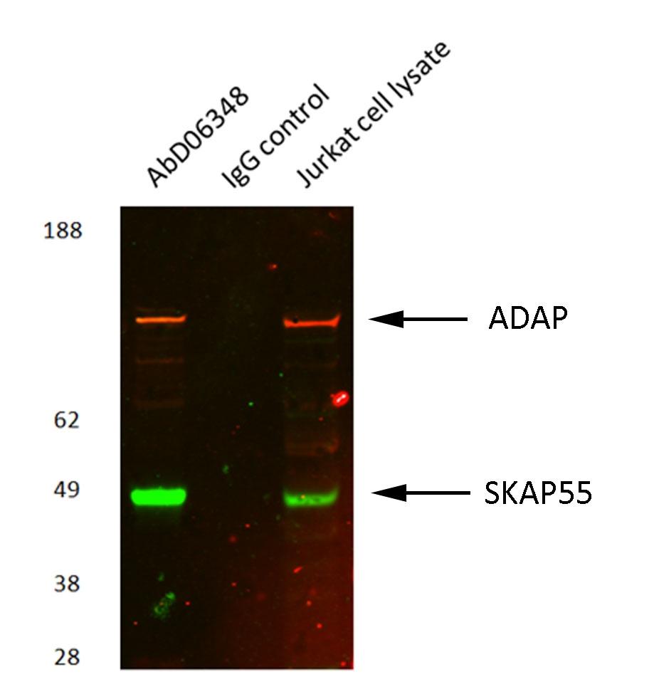 ADAP Antibody   AbD06348 gallery image 1