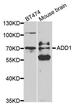 ADD1 Antibody gallery image 1