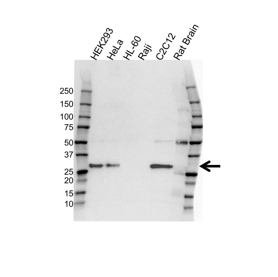 Adiponectin Antibody (PrecisionAb<sup>TM</sup> Antibody) | OTI7B11 gallery image 1