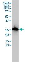 AIF1 Antibody | 2A2-B6 gallery image 1