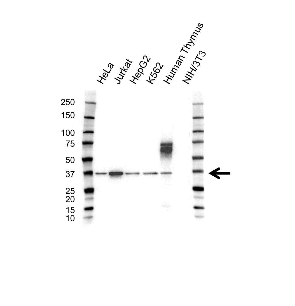 Aip Antibody (PrecisionAb<sup>TM</sup> Antibody) gallery image 1
