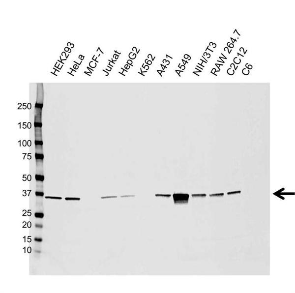 AKR1B1 Antibody (PrecisionAb<sup>TM</sup> Antibody) | CPTC28 gallery image 1