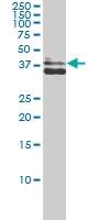 AKR1C4 Antibody | 2C11 gallery image 1